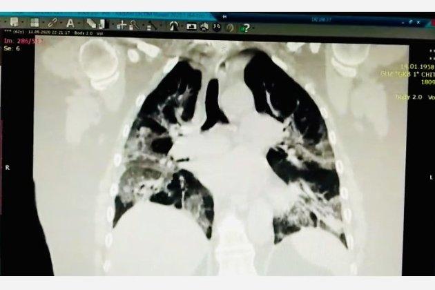 Разрушенные коронавирусом лёгки