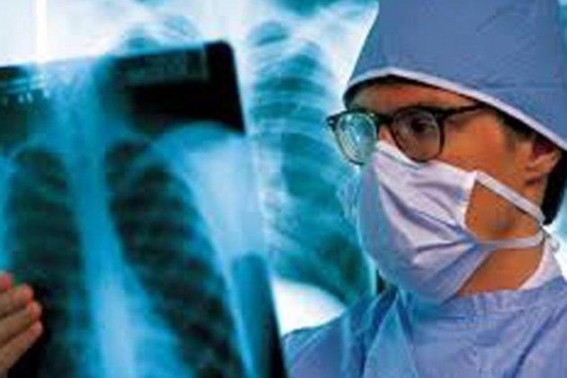 Фтизиатр держит рентгеновский снимок лёгких
