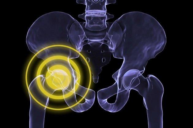 Пациенты «Академии Здоровья» в Чите смогут заменить тазобедренный ...