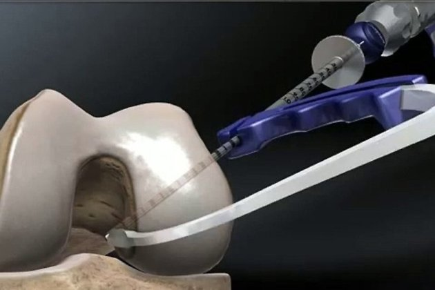 Операция по замене коленного сустава в чите